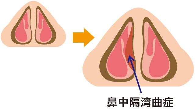 鼻中隔弯曲症の原因